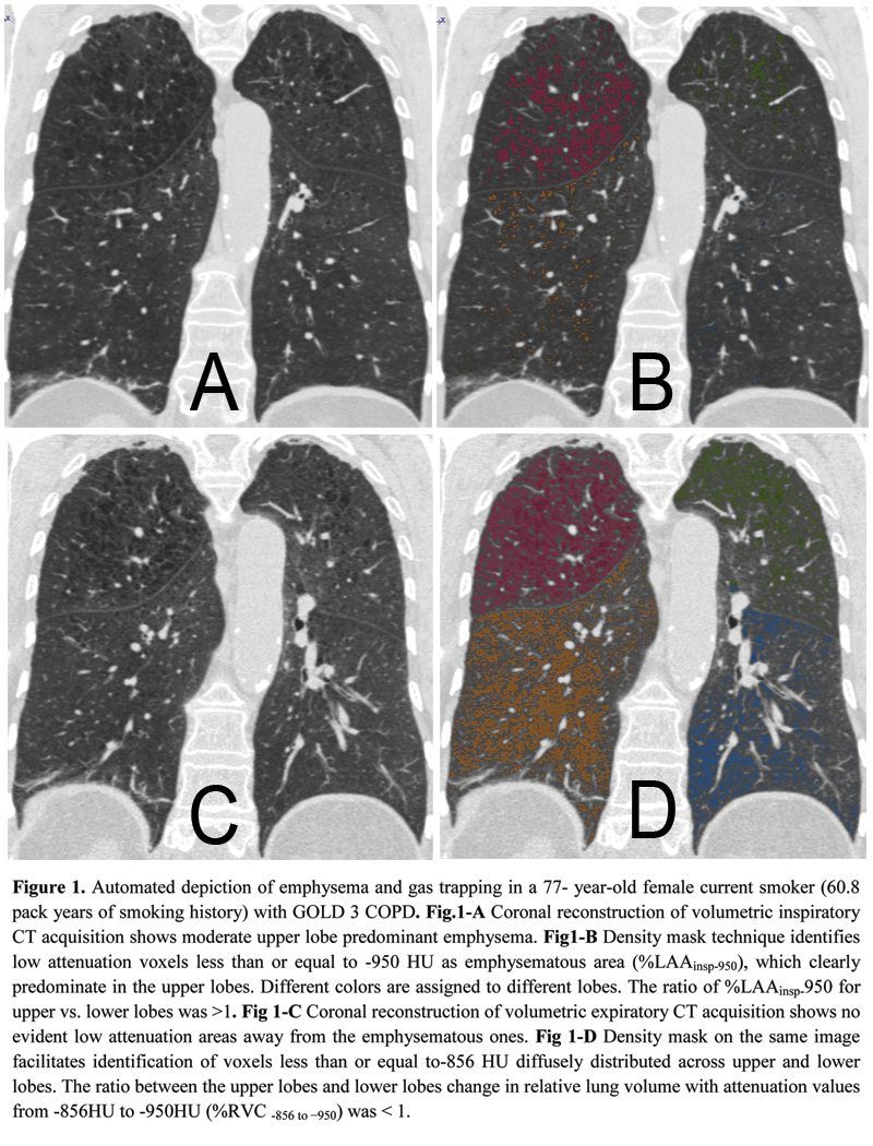 Copd research paper