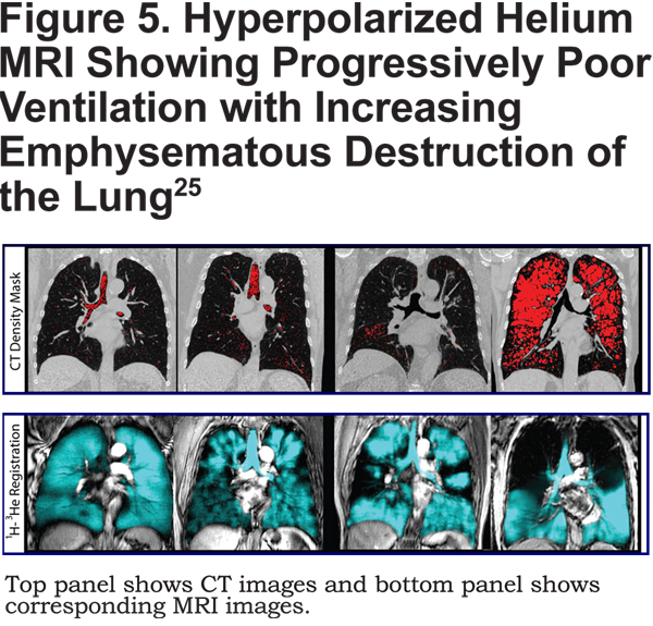 american thoracic society copd guidelines 2015