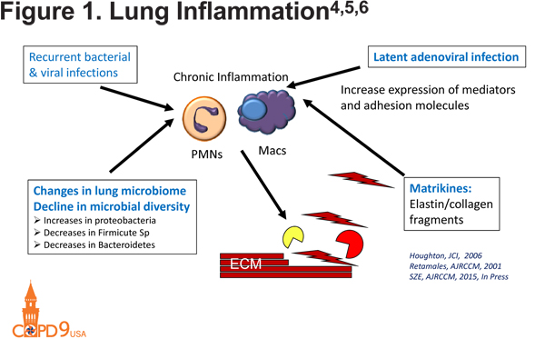 Pathophysiology of emphysema journal of copd foundation lung destruction figure 14 ccuart Gallery