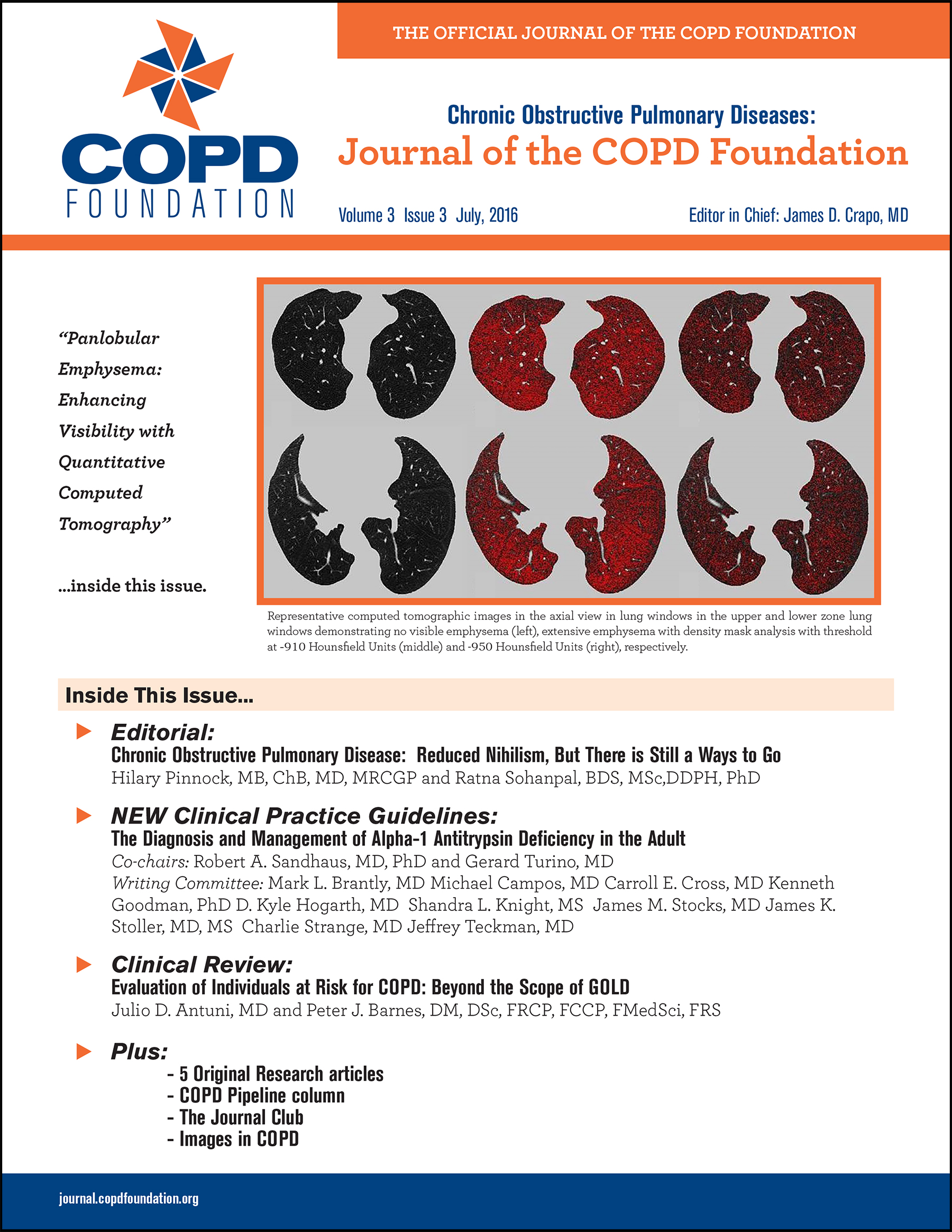 2018 Guidelines For Copd Management Uptodate Subscription For Free